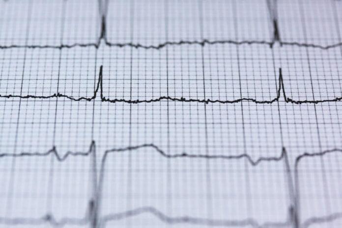 wyniki badania serca